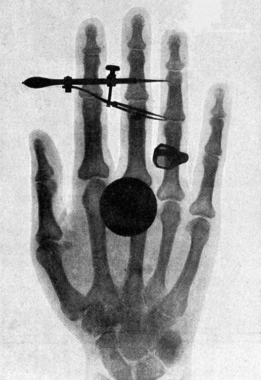 One of the first x-ray images, taken by Röentgen himself. The hand belongs to Bertha Röentgen, his wife.